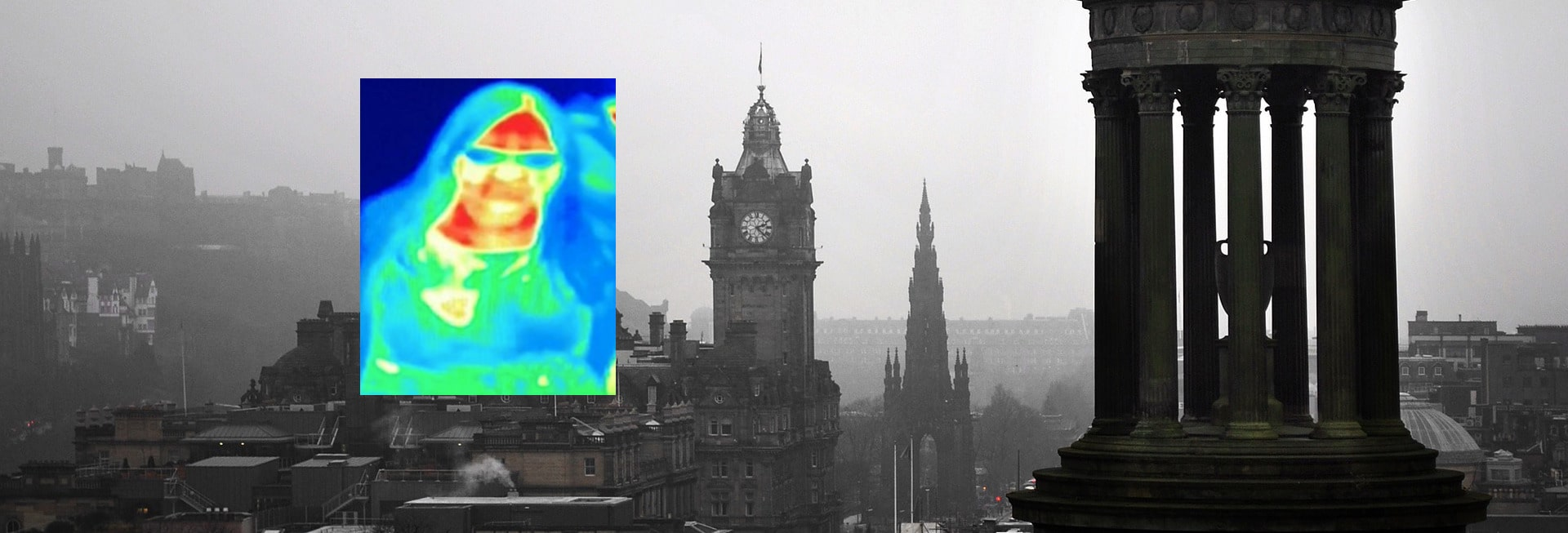 breast cancer detected by thermal camera